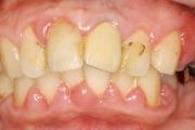 歯周病治療症例:術前
