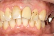 歯周病治療症例:術後